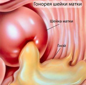 Почему пахнет из вагины — photo 12